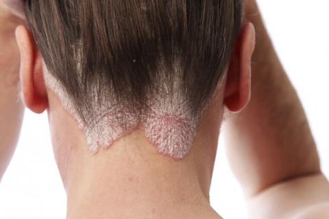 Diferencias dermatitis seborreica y atópica
