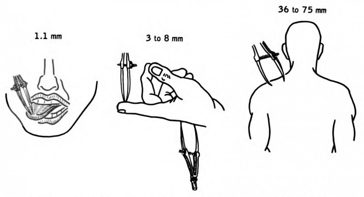 Test Lóbulo Parietal