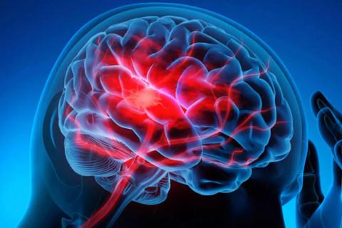 Enfermedades del sistema nervioso más comunes
