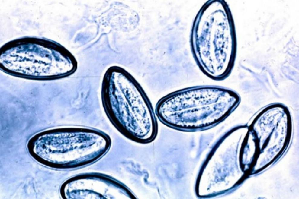 Enterobiasis