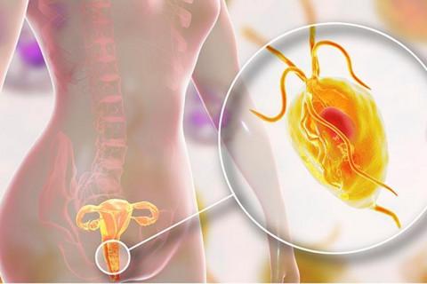Tricomonas síntomas tratamiento