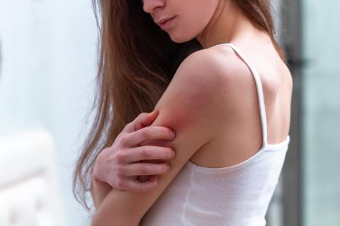 Tipos alergias piel
