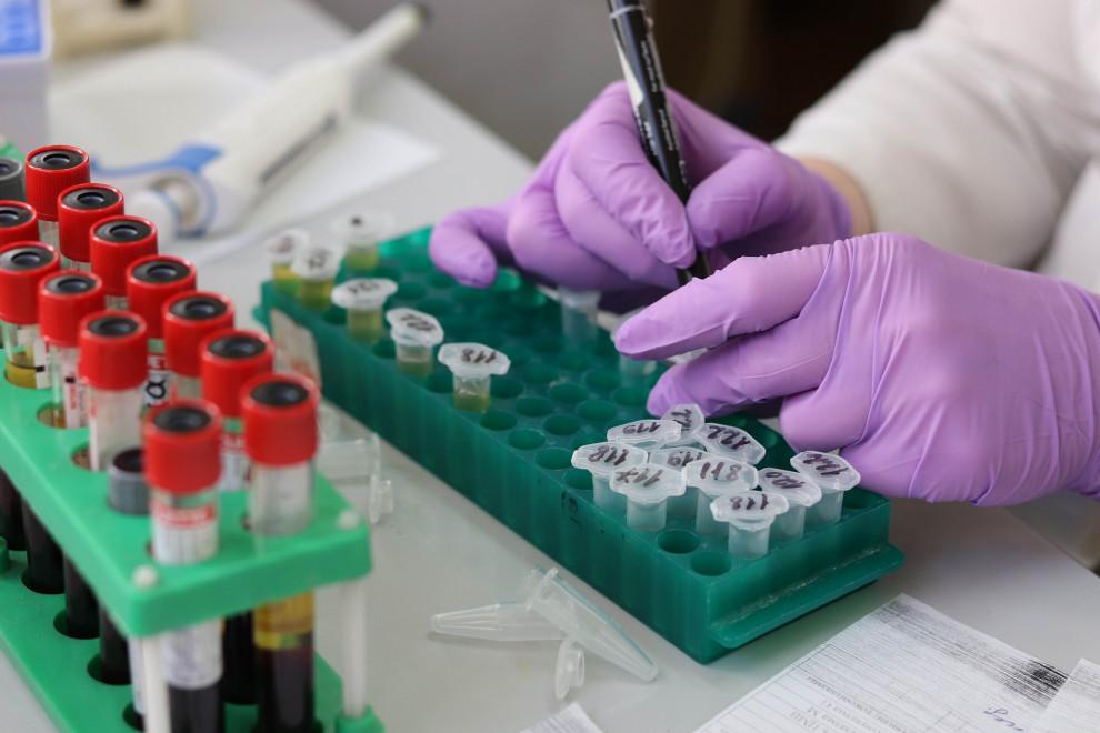 GGT alta: 12 causas y enfermedades relacionadas