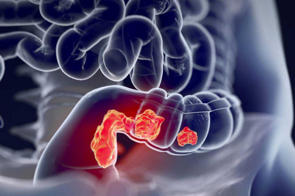 Diferencias cáncer colon derecho izquierdo