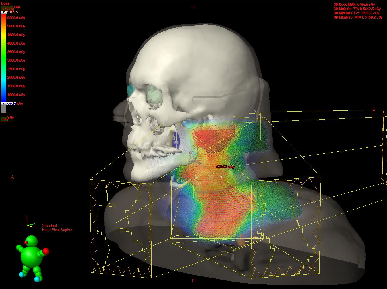 Radioterapia tridimensional