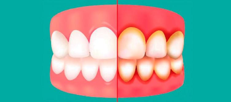 Gingivitis vs encías sanas