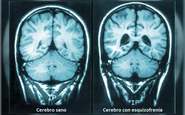 Cerebro con esquizofrenia
