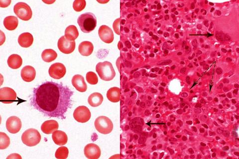 Hemoglobina Alta